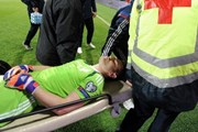 Акинфеев был ранен черногорскими футбольными фанатами. // Savo Prelevic, AFP